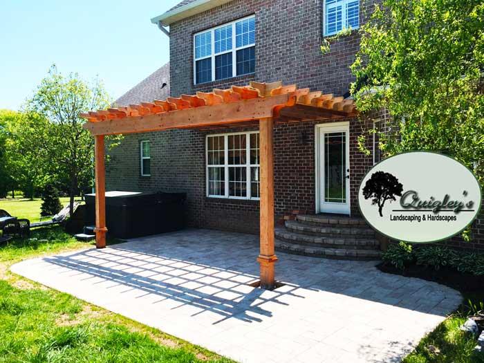 Cedar-Nashville-Pergola, Brentwood, Franklin, Spring Hill, and Nolensville TN Pergola Builders.